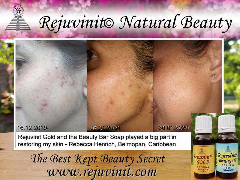 Rejuvinit Beauty Oil since 2009 - Best for Acne Scarring Dark Marks - now manufactured and distributed in Belize